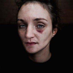 Истории на лицах бездомных людей