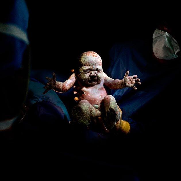 CAESAR #19Romane - born May 20, 2014 at 10:51 2kg 935 - 8 second